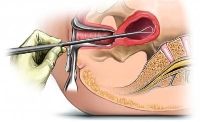 Показания для диагностического выскабливания полости матки